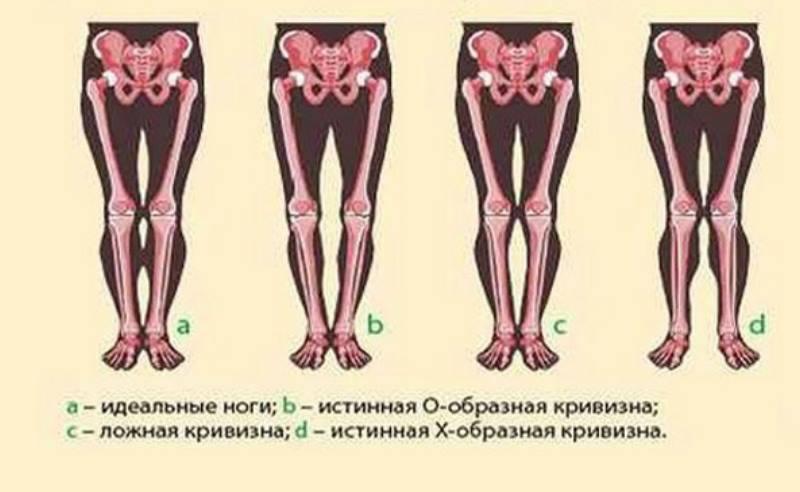 Врожденные кривые ноги